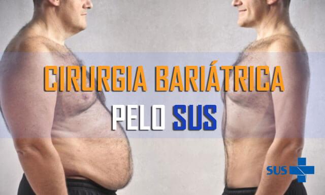 Bariátrica pelo SUS